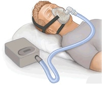 Sleep Apnea Treatment Options (PAP devices)