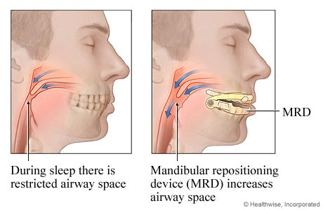 Sleep Apnea Treatment Option (Mandibular Advancement Device)