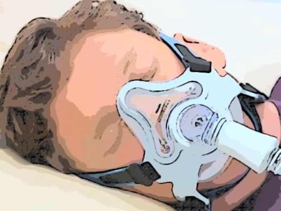 Types of CPAP Masks (Full Face Mask)